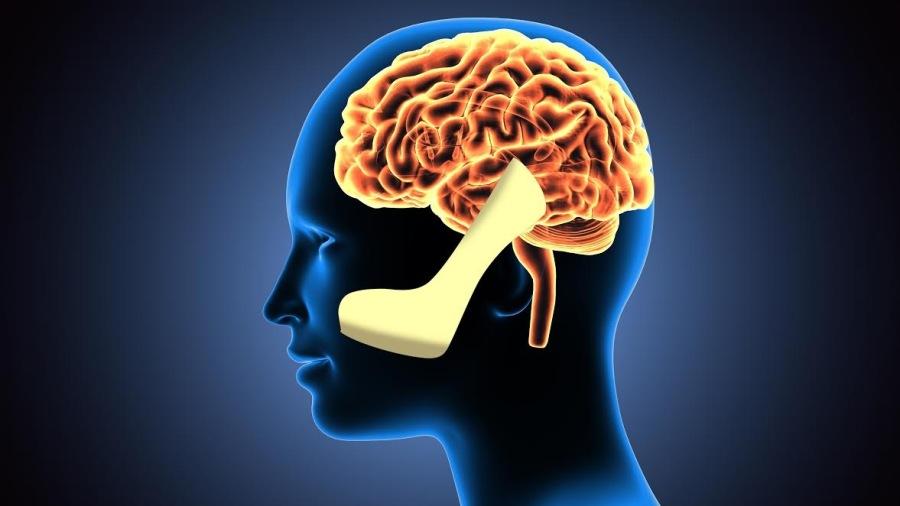 High-Heeled Brains
