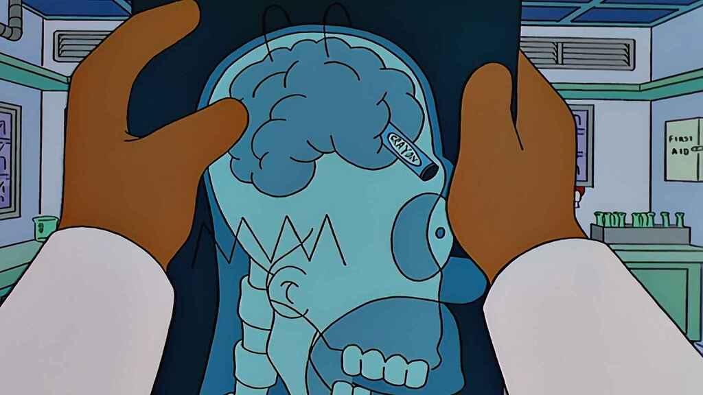Las cinco cosas más extrañas encontradas dentro del cráneo de una persona