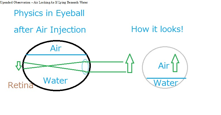 Upended Observation – Air Looking As If Lying Beneath WaterUpaatad Ob ry aimee As<br /> <br /> Physics in Eyeball<br /> <br />  <br /> <br /> after Air Injection How it looks!<br /> <br /> o——0 (wf)<br /> <br /> eS ater J Water